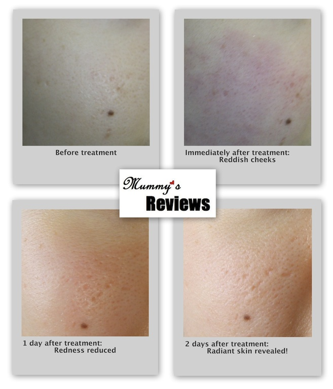 The Aesthetics Clinic Laser Treatment Skin Comparison